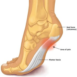 Heel-Pain-Beach-Visual2 Resolve Your Heel Pain Today ESWT foot heel pain leduc physio pain plantar shockwave therapy