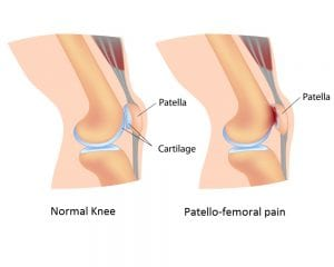 Ask-aPhysiotherapist Ask A Physiotherapist : Why Do My Knees Hurt When I Go Down The Stairs? anterior knee pain knee pain leducphysio patellofemoral pain physiotherapy